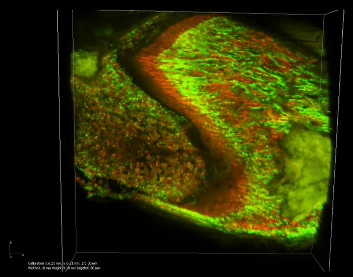 骨ができている部分を染める色素(カルセインとアリザリン・レッド)を使って、大腿骨の成長を観察したものです。2日後にできた骨が赤く染まっています。(共焦点レーザー顕微鏡画像から立体的に再構築した画像)